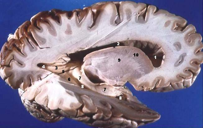 Human_brain_right_dissected_lateral_view_description